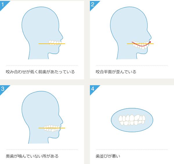 1.咬み合わせが低く前歯があたっている 2.咬合平面が歪んでいる 3.奥歯が噛んでいない所がある 4.歯並びが悪い
