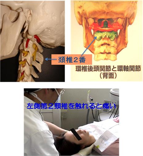 1 97%の方が左側の首の骨の2番目(頚椎2番目:歯突起)に圧痛があります。