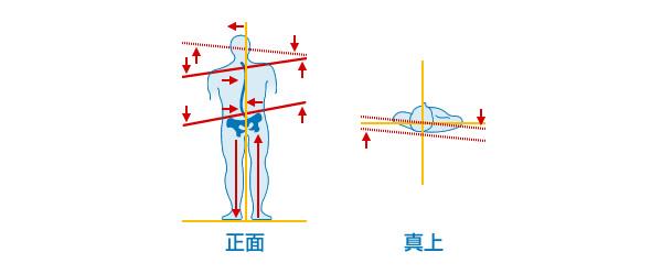 首の骨がズレると、背骨全体がS字状に歪みます。及び骨盤がズレます。そして体の不調がでてきます。