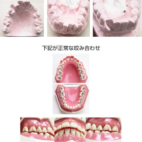 1 歯列不正(歯並び悪い)と歯を磨いても歯周病に なりやすいのです。