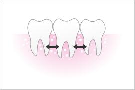 正常な状態は歯と歯の間に骨があります。