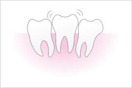 重度歯周病になり歯が抜けてしまいます