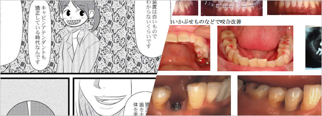 歯を削らず貼り付ける治療方法ラミネートベニア