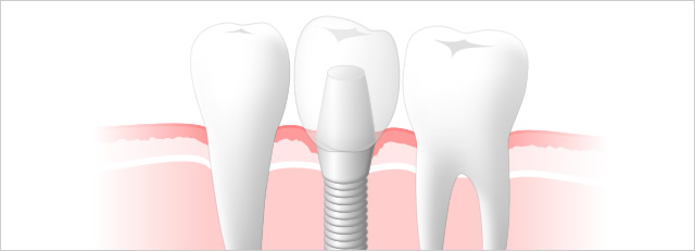 横の歯に負担がかからないインプラント治療